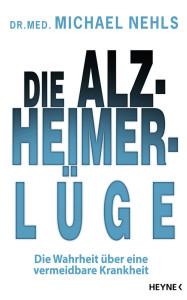 Alzheimer-Luege